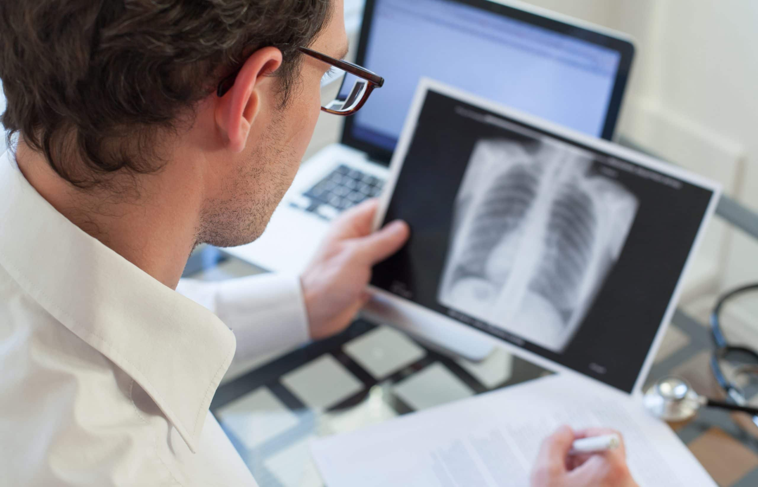 This is an image of a doctor looking over a patients Small Cell Lung Cancer results.