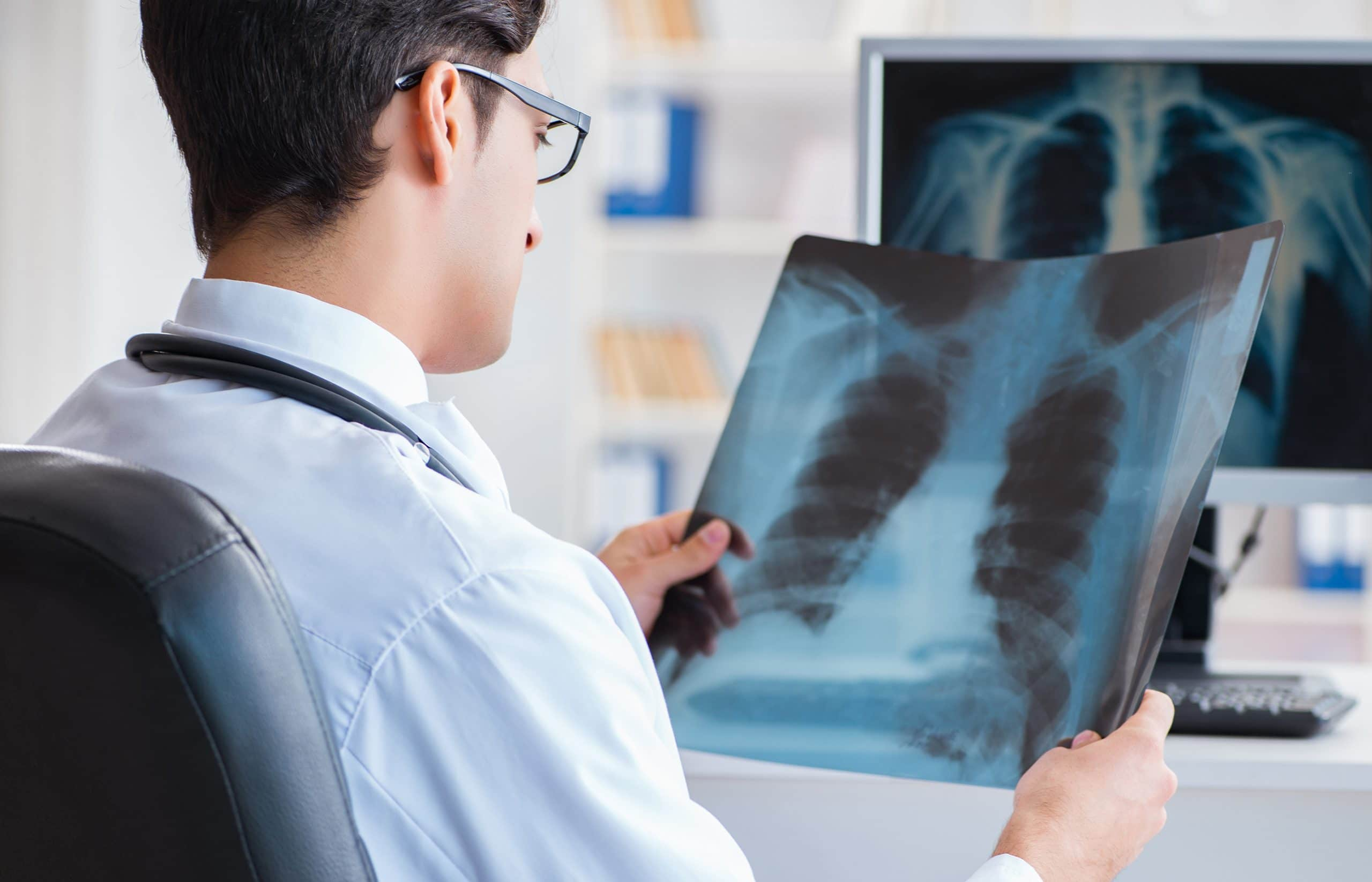 This is an image of a doctor looking at the x-rays of lungs.