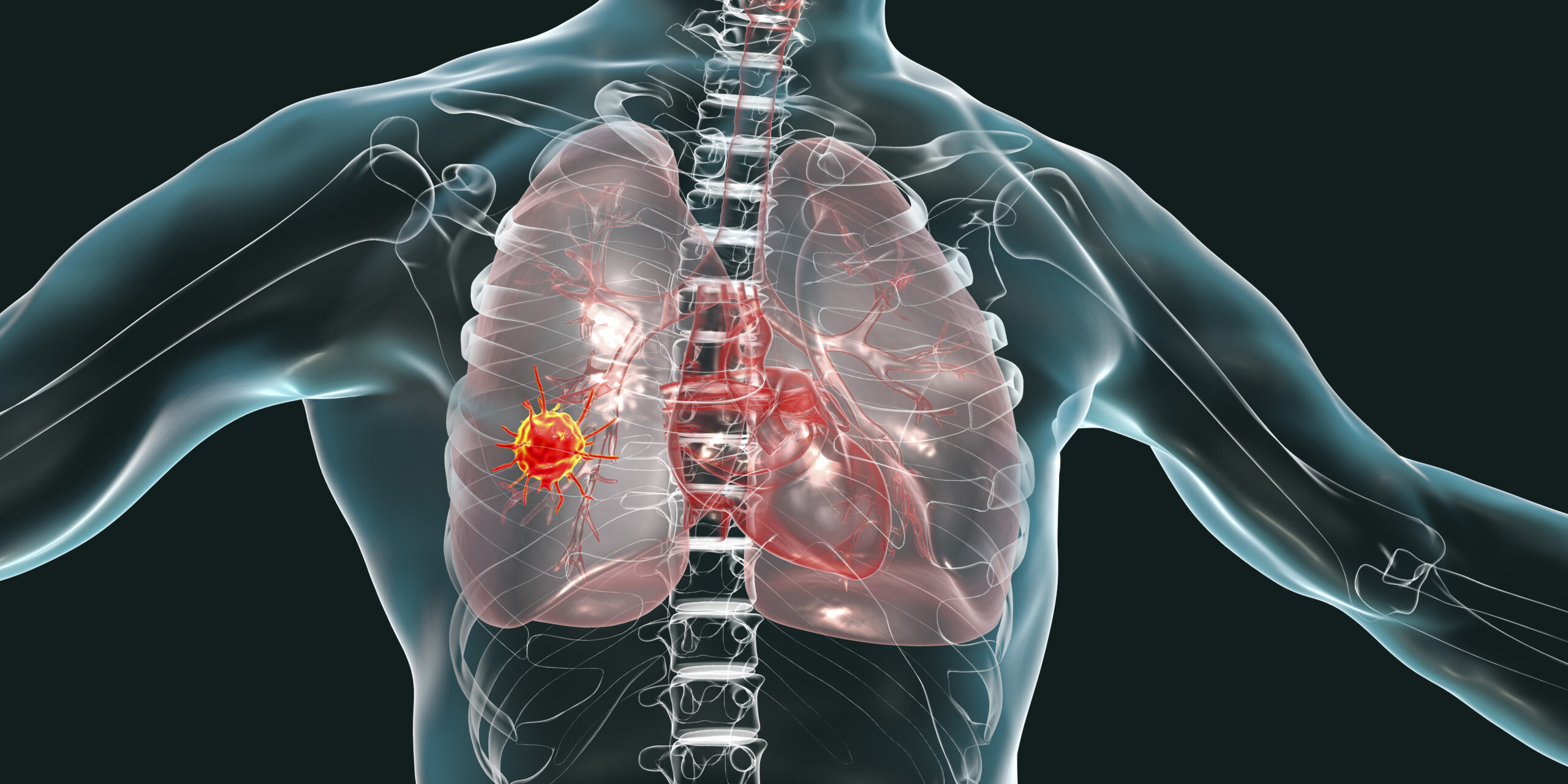 Lung cancer, conceptual image.